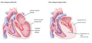 img_miocardiopatia_2_3